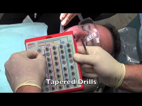 Dental Implant Surgery - Help for Surgery