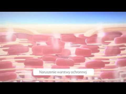 Lhuile rastoropchi au psoriasis le forum