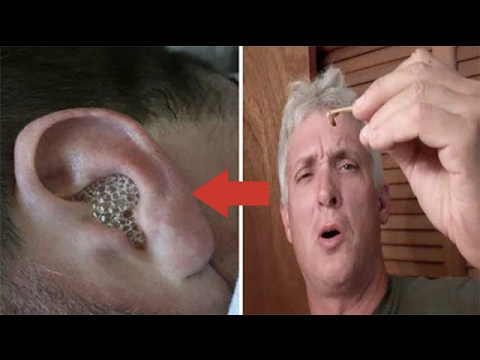 Pediculosis หรือโรคสะเก็ดเงิน