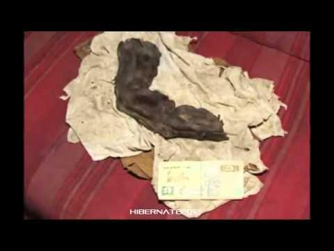 Halgus koślawe stopy