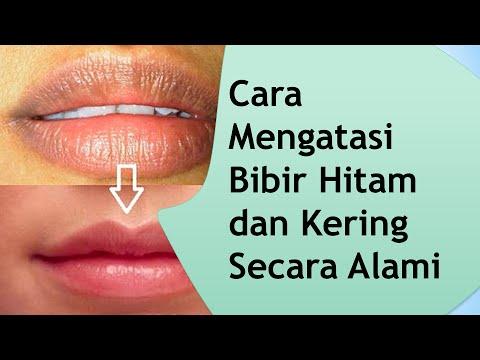 Video Cara Mengatasi Bibir Hitam dan Kering Secara Alami