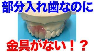 部分入れ歯なのに金具がない?