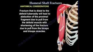 Humerus Fractures - Everything You Need To Know - Dr. Nabil Ebraheim