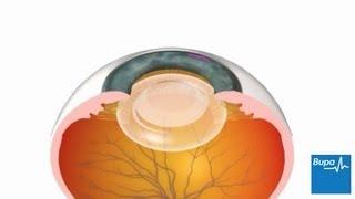 5593ae4925 Cataract surgery