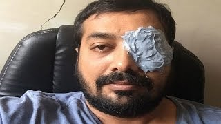 Anurag Kashyap Punched By An MMA Fighter Hurts One Eye