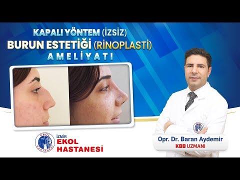 Kapalı Yöntem Burun Estetiği Ameliyatı - Opr. Dr. Baran Aydemir - İzmir Ekol Hastanesi