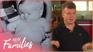 What Happened To The Children of the Thalidomide Epidemic?   No Limits   Real Families