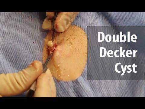 Double Decker Cyst!!