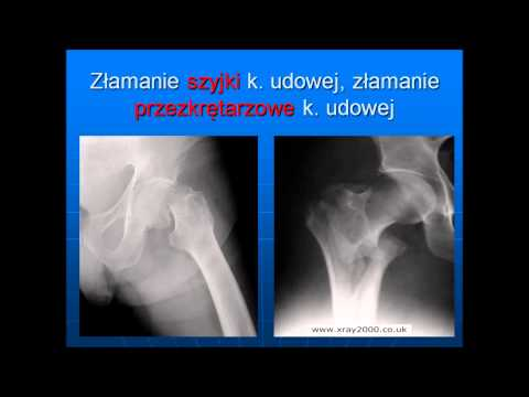 Hip dorsopathies objawy i leczenie