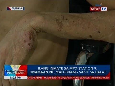 Anong mas mahusay na paraan sa paggamot sa isang halamang-singaw