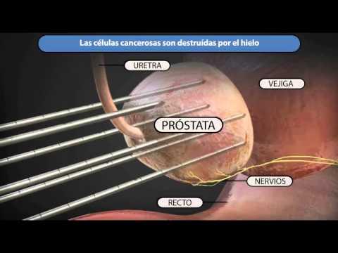 Sport dopo la rimozione della adenoma prostatico