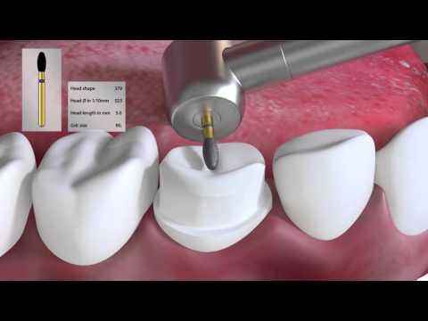 Crown preparation tutorial by Prof. Brian Millar