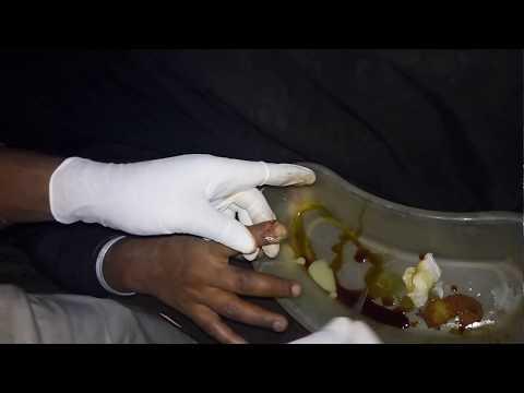 Isang paglalarawan ng lahat ng uri ng halamang-singaw sa kuko