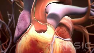 VSI Guideliner Medical Animation