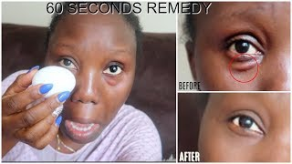IN 1 MINUTE REMOVE BAGGY AND PUFFY EYES! IT WORKS FOR EVERYONE