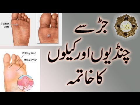 Warts ka treatment in urdu. Warts ka treatment in urdu - expert-evaluator-de-risc.ro