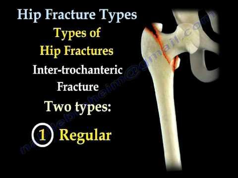 Der Name des Arztes für die Behandlung von Osteoarthritis