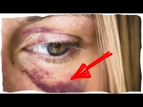 Красные глаза после лазерной операции