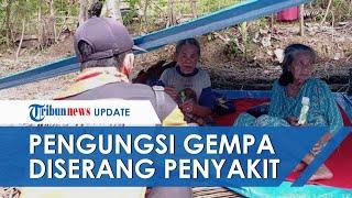 Pengungsi Gempa Sulbar Mulai Terserang Penyakit, Petugas Medis hingga Terapis Diturunkan