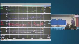 Мониторинг при  управлении анестезией. Субботин В.В.