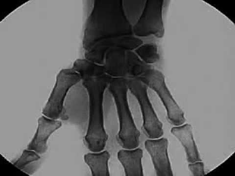 Schmerzen unter dem rechten Schulterblatt von der Rückseite