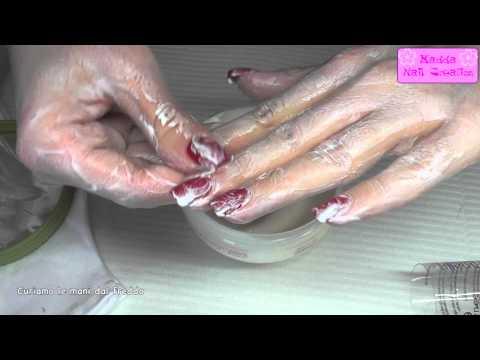 Invalidità a dermatite atopic