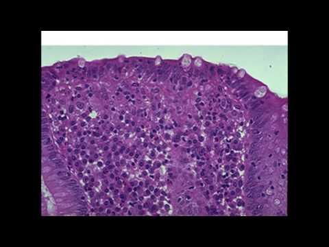 Hpv vírus és herpesz