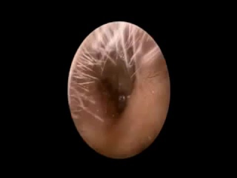 Vindeca prostatita bacteriana