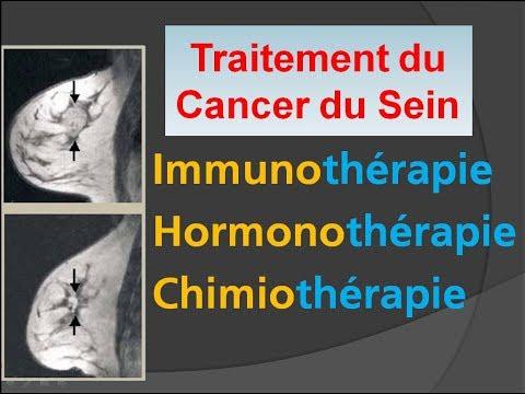 Le traitement de linflammation de la glande de la prostate dans la maison
