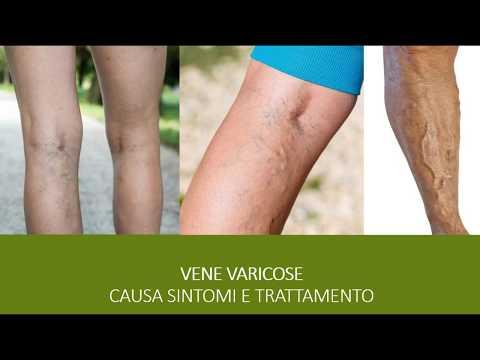 Vena di stinco di dolore di gamba