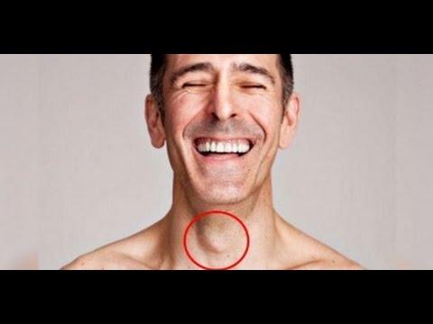La psoriasis o priva sobre la cabeza