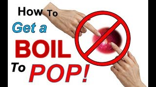 How to GET a BOIL to POP Naturally & Safely | Can You POP a BOIL (Safely)?