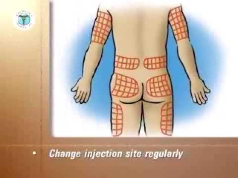 Traiter langine de poitrine chez les patients atteints de diabète sucré