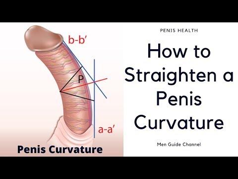 Care sunt cele mai sensibile locuri de pe penis