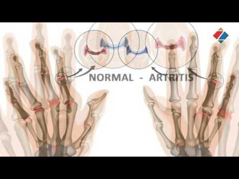 Liječenje prostatitisa YouTubeu
