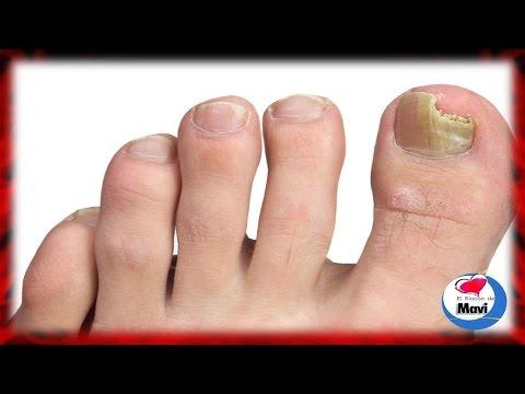 Los preparados médicos para el tratamiento del hongo de las uñas de los pies