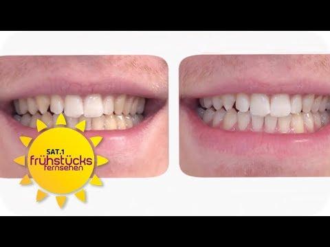Zahnbleaching im Test: Wie bekomme ich die weißesten Zähne? | SAT.1 Frühstücksfernsehen | TV