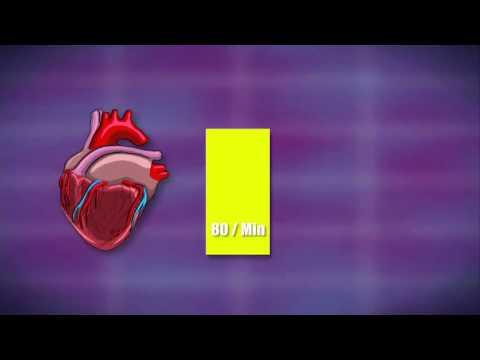 Ein scharfer Abfall des Blutdrucks, Verlust des Bewusstseins