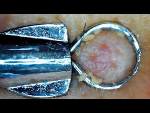 Beruhigend bei atopitscheskom die Hautentzündung