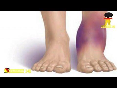 Kniegelenkersatz-Erholzeit