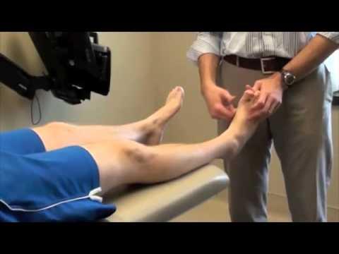 Artroza articulației genunchiului stâng, gradul 2-3
