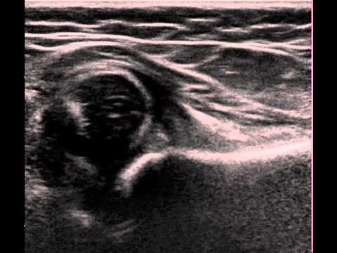 Luka naramienny więzadła stawu skokowego zdjęcie