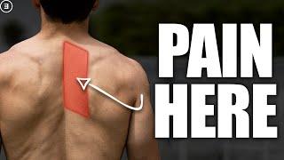 Rhomboid Pain (Shoulder Blade Discomfort)