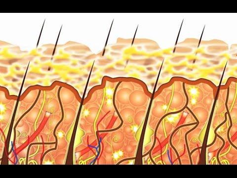 Que curar el picor de la piel a la psoriasis