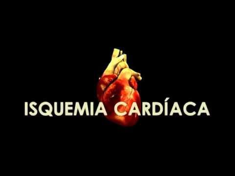 Drogas para o tratamento da hipertensão com taquicardia