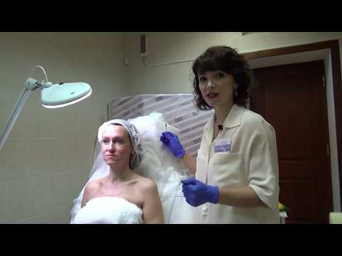 Процедуры full face — омоложение лица за один раз
