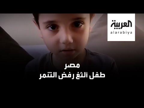 العرب اليوم - شاهد: طفل مصري