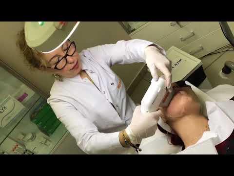 Ameliyatsız Yüz germe Ultherapy - Ultraskin