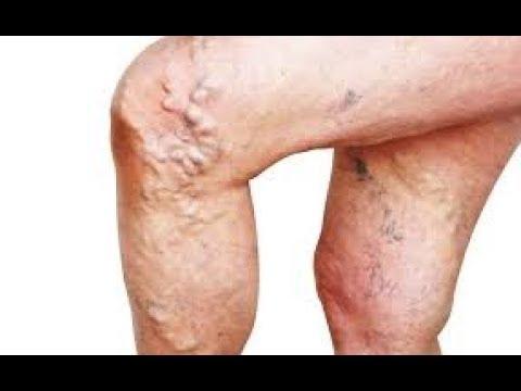 Prostatite negli uomini trattati con rimedi popolari zucca