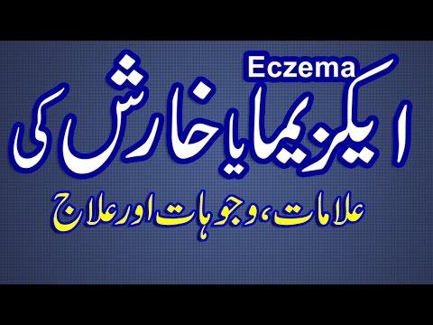 Trattamento di sodio di eczema thiosulphate